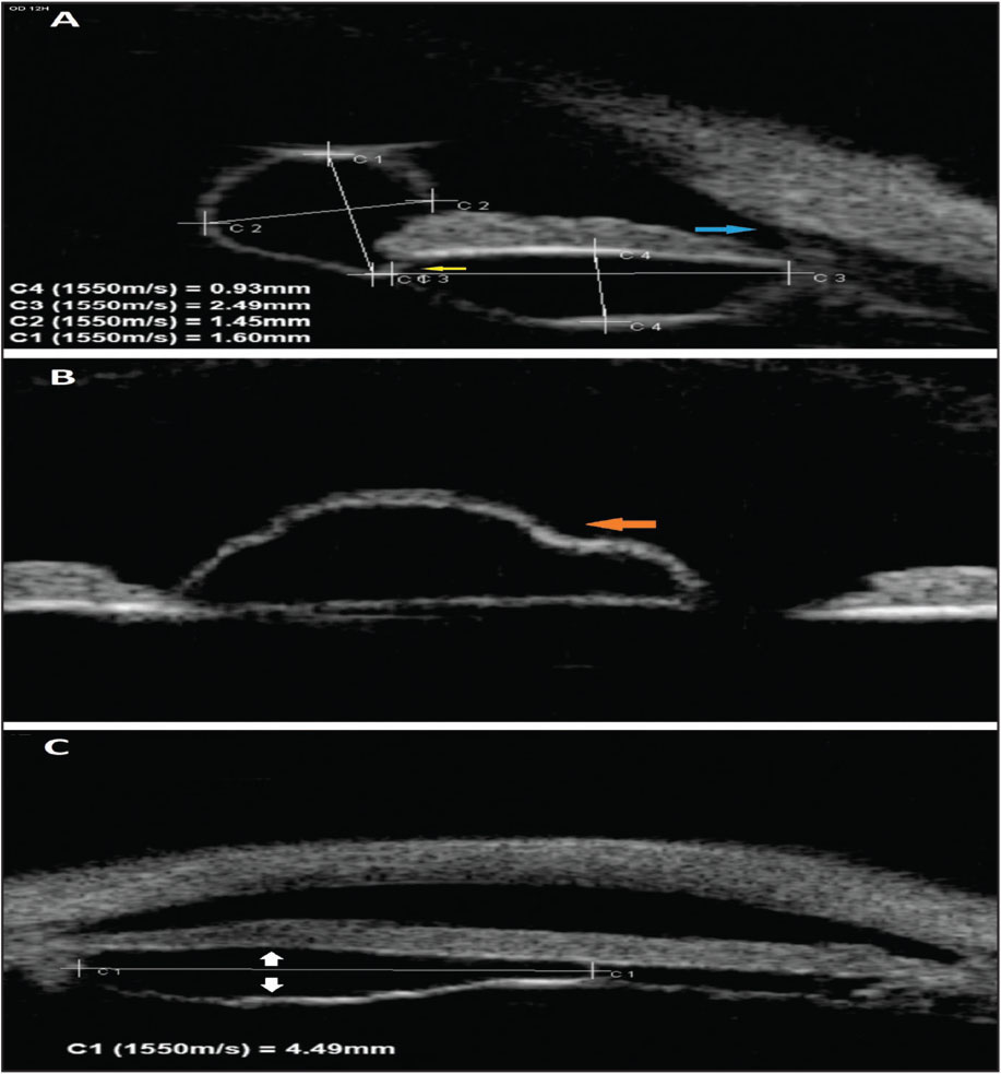 High frequency ultrasonography. (A) Vertical section after dilatation showing an anechoic cyst with two parts, at the back of the iris and in the pupil, separated by a thin membrane (yellow arrow). Note an open iridocorneal angle (blue arrow). (B) Oblique section showing the polylobed character of the pupillary part of the cyst that is taken from the posterior surface of the iris (orange arrow). (C) Horizontal section showing the cyst has developed from the surrounding iris epithelium (white arrows).