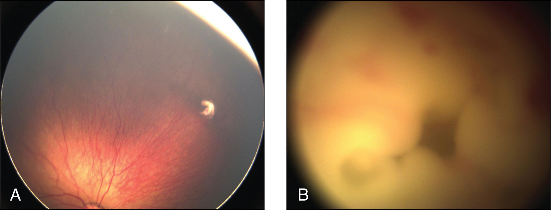 Fundus photographs of (A) the right eye showing periphery with one large horseshoe-shaped subretinal lesion and multiple, smaller discrete white lesions, and (B) the left eye showing a white, creamy mass with areas of hemorrhage filling the retrolental space.