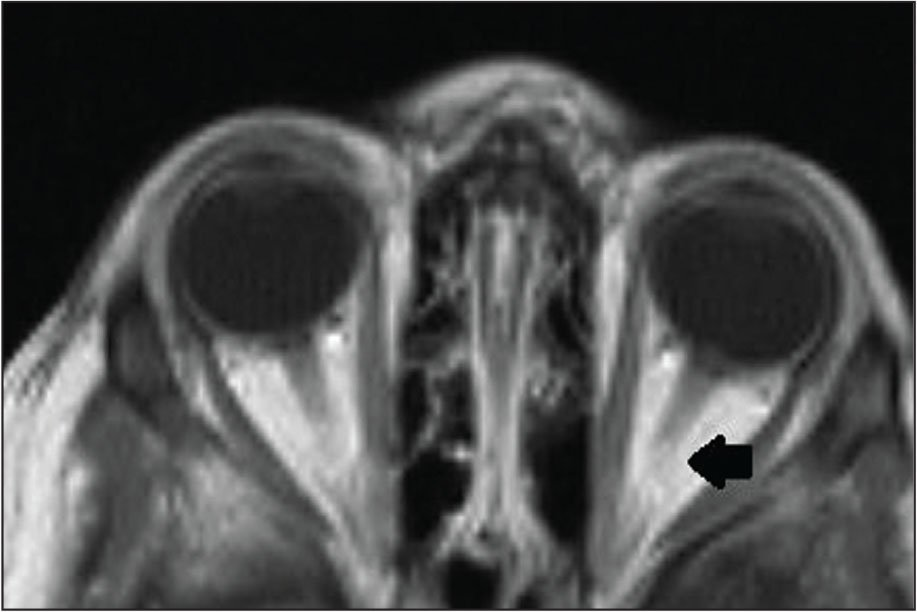 Axial contrast magnetic resonance imaging of the orbits showing normal optic nerves. Left eye demonstrates non-enhancing mass covering the optic disc (arrow).
