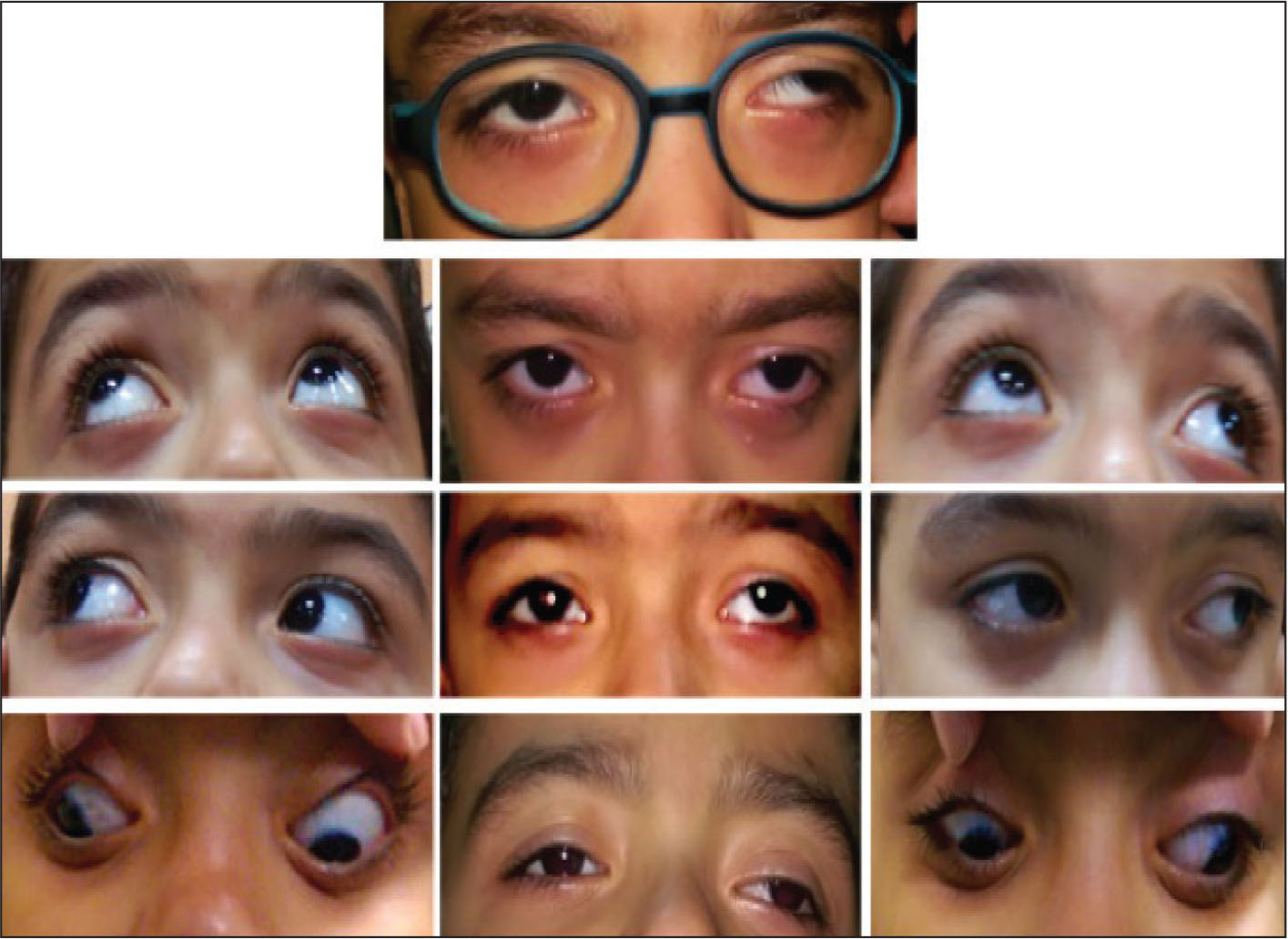 Preoperative composite showing exotropia, dissociated vertical deviation with normally acting inferior oblique muscles, A-pattern deviation, and bilateral superior oblique overaction.
