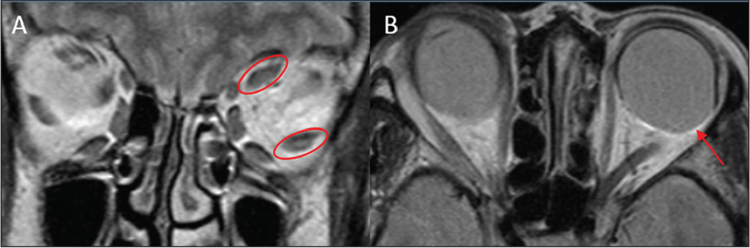 Preoperative orbital magnetic resonance imaging. (A) Coronal scan showing a nasal shift of the superior rectus muscle and an inferior shift of the lateral rectus muscle (red circle). (B) Horizontal scan showing axial elongation of the eyeball and prolapse of the posterior part of the equator from the muscle cone temporally (red arrow).