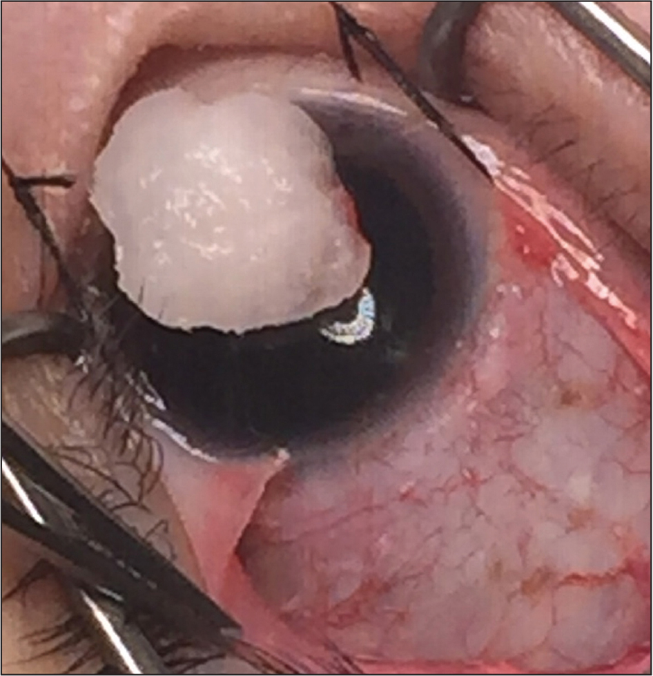 An intraoperative photograph demonstrating the absence of the lateral rectus muscle anterior to the equator in the right eye.