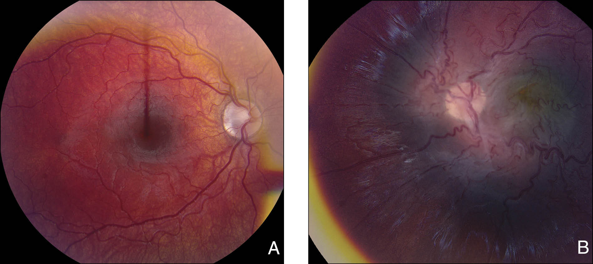 Fundus photography of (A) the right eye at 46 months within normal limits and (B) the left eye at 46 months showing the central area of the retinal traction and fibrosis in the posterior pole with vascular tortuosity.