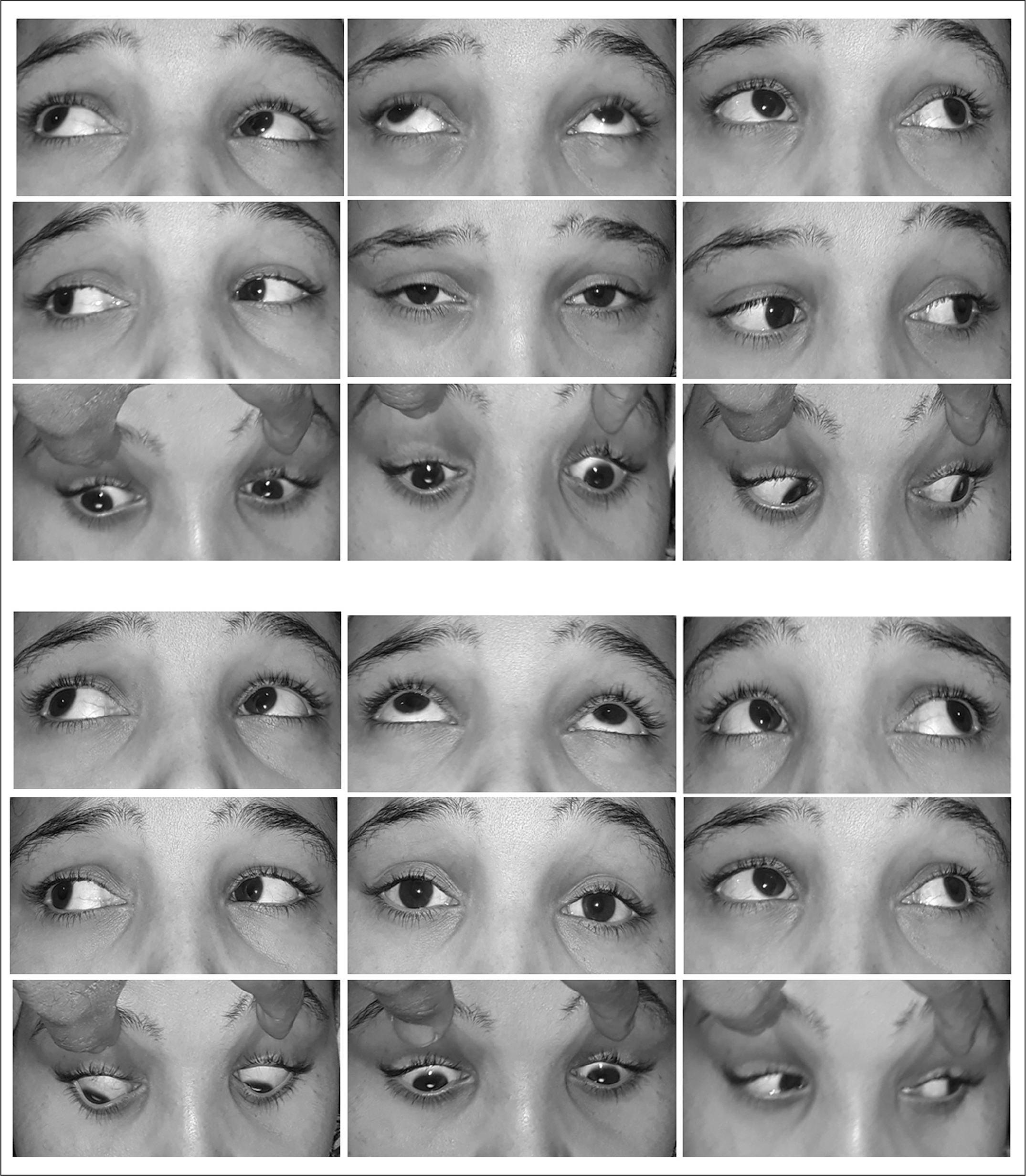 Top panels show preoperative photographs of a patient with large V-pattern exotropia with no oblique dysfunction. Bottom panels show improvement of the V-pattern 6 months after bilateral lateral rectus recession 5 mm with full-tendon upward transposition.