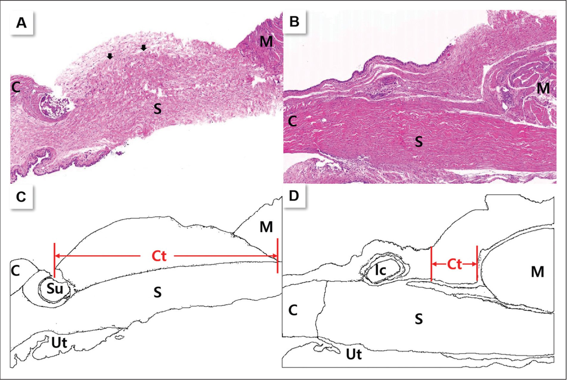 Representative histologic findings with hematoxylin–eosin staining (original magnification ×20) at postoperative week 4 in the (A) residual muscle stump group and (B) control group. (C–D) Schematized diagrams show the orientation. The residual muscle stump group showed a space that was filled with connective tissue in front of the superior rectus muscle (arrowhead) in comparison to the control group. C = cornea; S = sclera; M = extraocular muscle; Ct = connective tissue; Su = suture material; Ic = inflammatory cells; Ut = uveal tract