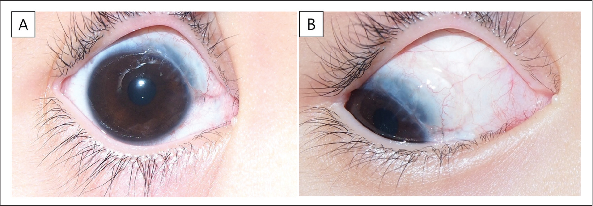 (A and B) Anterior segment photography 9 months postoperatively. No recurrence of cysts occurred, and the cornea regained clarity.