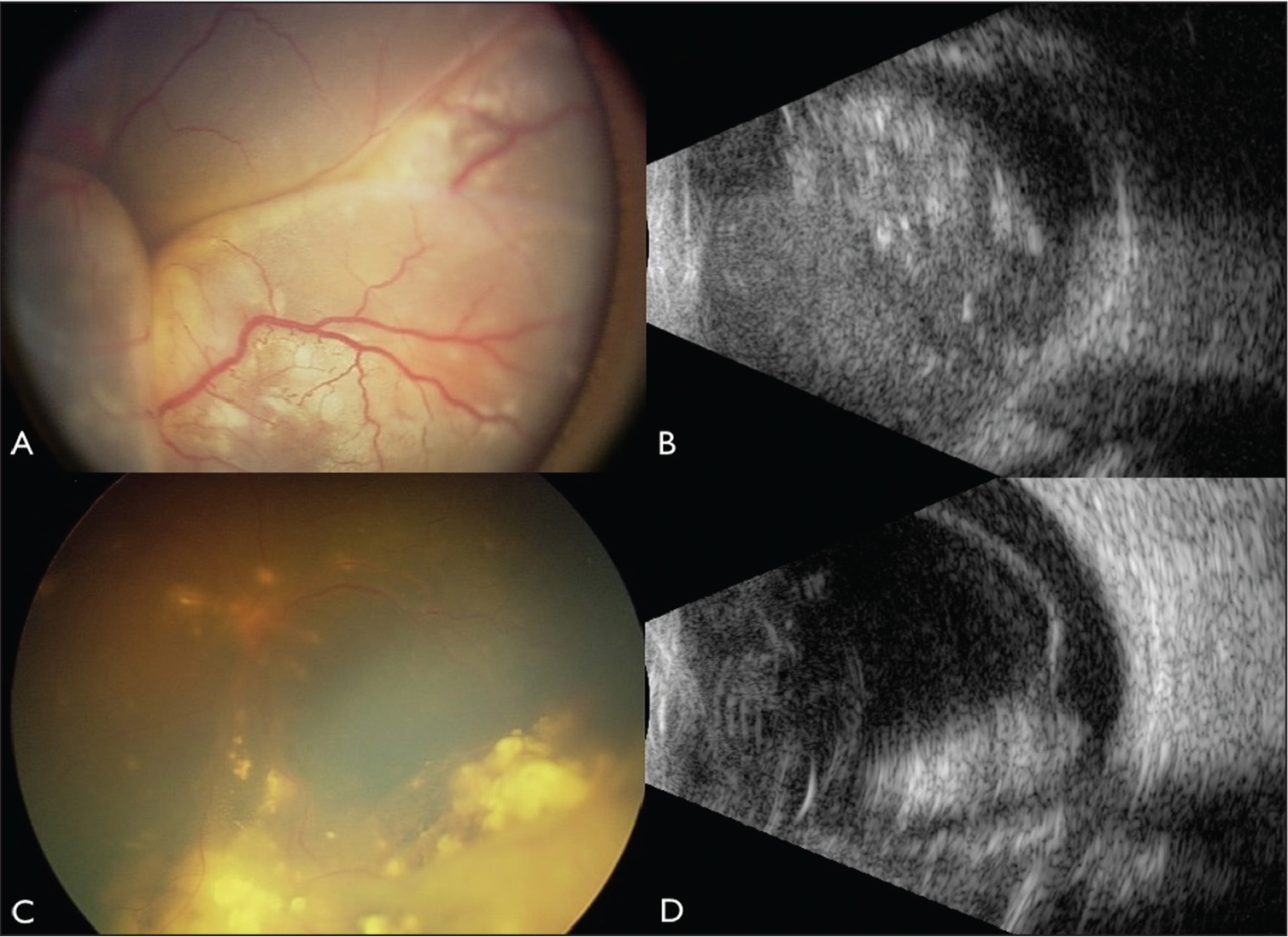 Group E unilateral retinoblastoma treated with intra-arterial chemotherapy (IAC). (A) A 19-month-old boy treated with IAC for group E retinoblastoma initially presented with total retinal detachment and retinal neovascularization. (B) Ultrasonography confirmed a tumor size of 20 mm in basal diameter and 16 mm in thickness with intralesional calcification. (C) Tumor regression occurred after one cycle of IAC, with (D) ultrasonography demonstrating decreased tumor thickness to 6 mm and improvement in subretinal fluid.