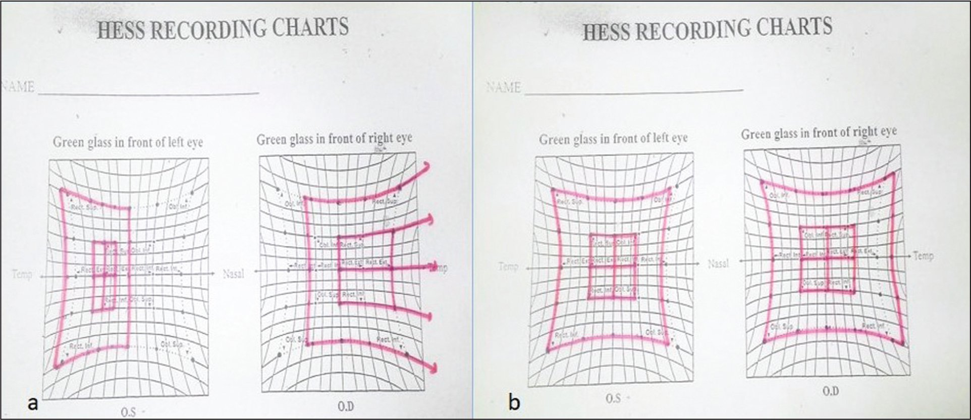 (A) Preoperative Hess chart shows underaction of the left medial rectus muscle and overaction of the right lateral rectus muscle. (B) Postoperative Hess chart shows no limitation of extraocular movements.