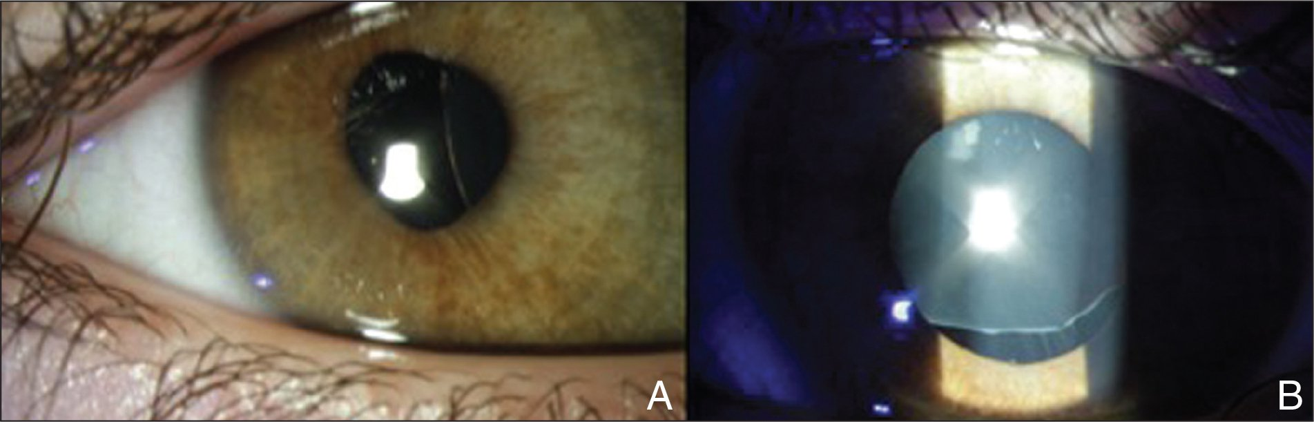 (A) Nasally displaced lens in the right eye of the patient and (B) superiorly displaced lens in the left eye of the patient.