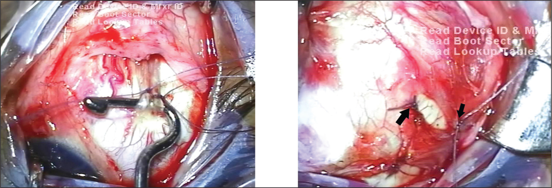 Intraoperative images showing transposition of the temporal half of the superior rectus muscle to the lateral rectus muscle with muscle union suture and ciliary muscle sparing in the nasal half of the inferior rectus muscle.