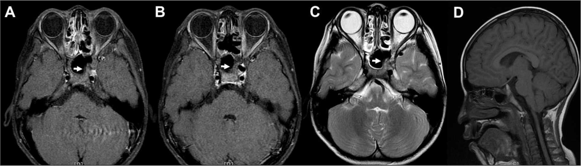 (A) Brain magnetic resonance imaging at presentation. (B) Axial T1-weighted images with gadolinium enhancement and fat suppression show isointense to hyperintense lesions in the sphenoid and cavernous sinus expanding to the left orbit apex, suggesting postoperative hematoma (arrows). (C) Axial T2-weighted image shows heterogeneous hyperintensity in the same lesion (arrow). (D) Sagittal T1-weighted image shows mild infraposition of cerebellar tonsil below the foramen magnum.
