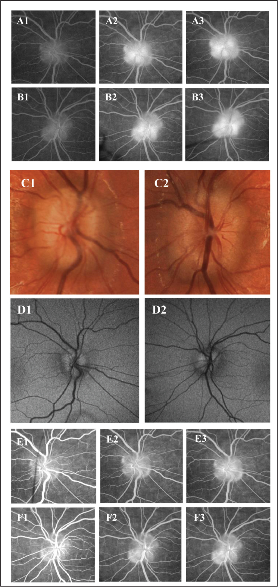 Optic nerve imaging of case 1. A1–A3 (right eye), B1–B3 (left eye): oral fluorescein angiography images at 20, 30, and 60 minutes after dye consumption. Increasing circumferential and nodular hyperfluorescence, but margins of hyperfluorescence remain sharp. C1 (right eye), C2 (left eye): color photographs showing 360 degrees of optic nerve head elevation without vessel obscuration. D1 (right eye), D2 (left eye): positive autofluorescence of each optic nerve head. E1–E3 (right eye), F1–F3 (left eye): intravenous fluorescein angiography images at < 1, 2 to 3, and > 5 minutes after dye injection. Increasing circumferential (both eyes) and nodular (left eye) hyperfluorescence, but margins of fluorescence remain sharp.