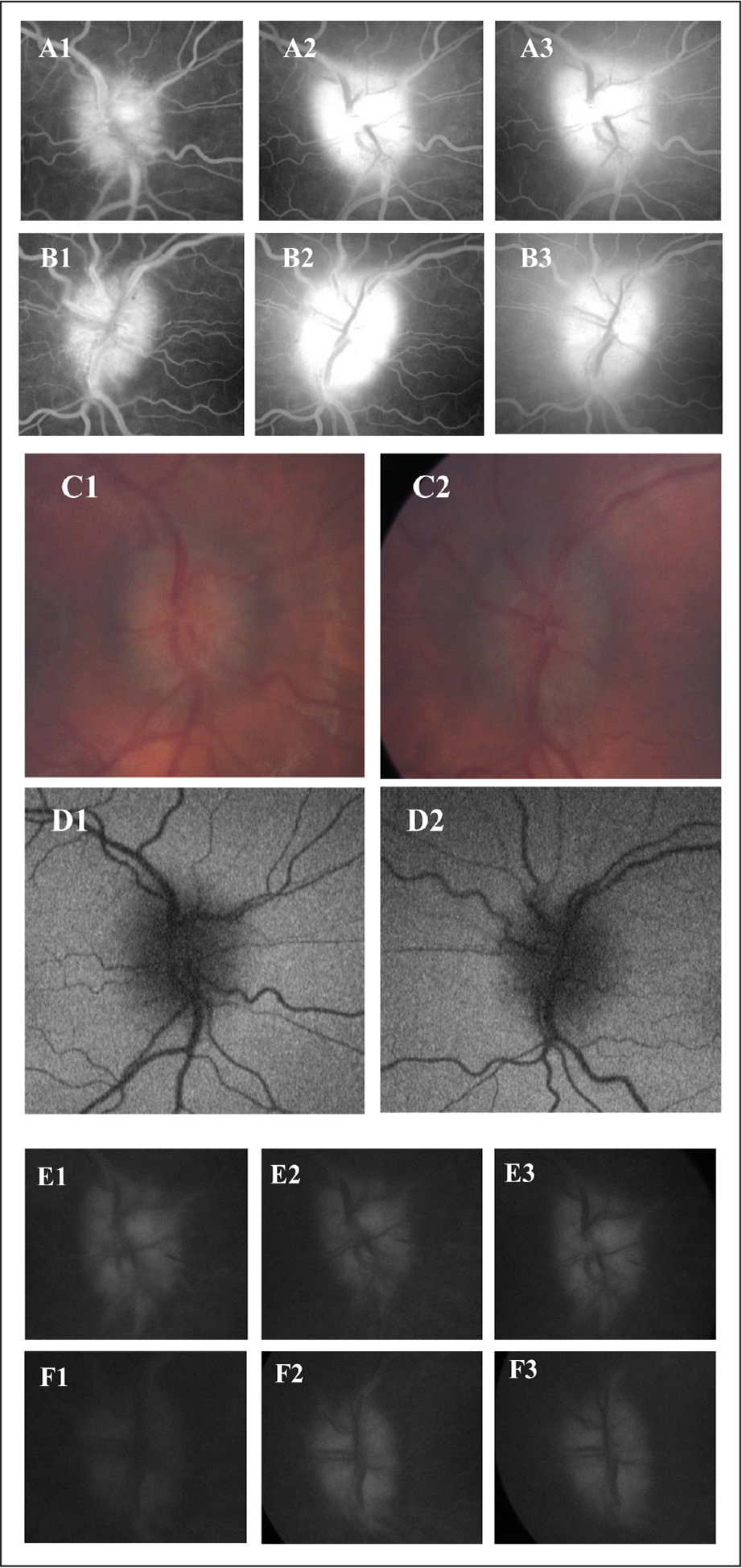 Optic nerve imaging of case 3. A1–A3 (right eye), B1–B3 (left eye): oral fluorescein angiography images at 20, 30, and 60 minutes after dye consumption. Increasing circumferential hyper-fluorescence with indistinct margins. C1 (right eye), C2 (left eye): color photographs showing 360 degrees of optic nerve head elevation without vessel obscuration. D1 (right eye), D2 (left eye): negative autofluorescence of each optic nerve head. E1–E3 (right eye), F1–F3 (left eye): intravenous fluorescein angiography images at 2 to 5 minutes on the right and 1 to 6 minutes on the left after dye injection. Diffuse hyperfluorescence at the optic nerve head with indistinct margins. Earlier phase photographs were unable to be obtained because the correct camera filter was inadvertently turned off at the beginning of the study.