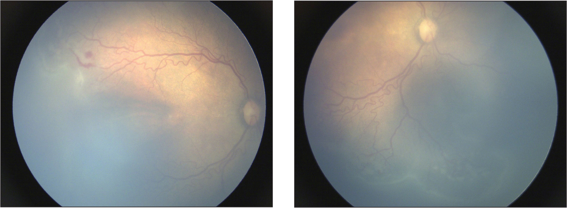 An example of a patient who was treated with anti-vascular endothelial growth factor for aggressive posterior retinopathy of prematurity at post-menstrual age of 34 weeks. The patient's gestational age was 29 weeks and birth weight was 1,250 g. The image on the left is a temporal view and the image on the right is the inferior view. Both images are from the same patient.