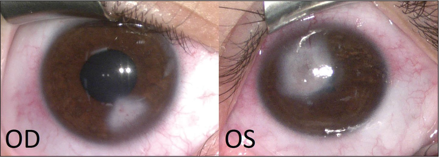 Images of the right (OD) and left (OS) eyes obtained during examination under anesthesia 1 month following the initial visit and treatment. Corneal scarring is seen in both eyes at the site of previous ulceration.