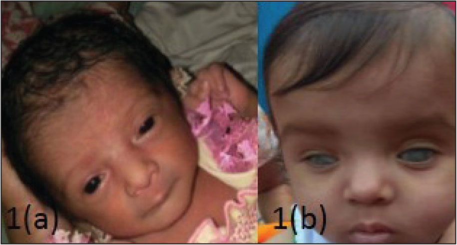 Photograph of case 1 showing keratomalacia in both eyes at (A) 4 and (B) 9 months of age.
