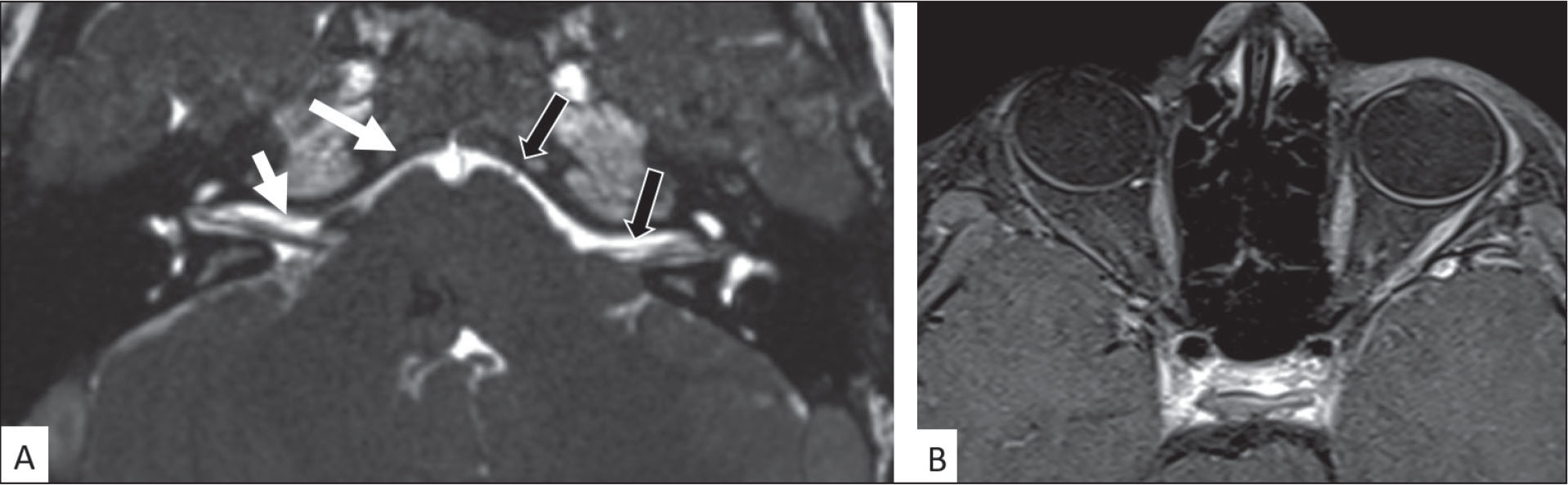 (A) (Axial) Fast imaging employing steady-state acquisition magnetic resonance imaging showing hypoplasia of abducens and facial nerves in pre-pontine cisternal space on the right side (white arrow) and normal abducens and facial nerves on the left side (black arrow). (B) (Orbital) Axial T1-weighted magnetic resonance imaging with contrast shows right lateral rectus atrophy.