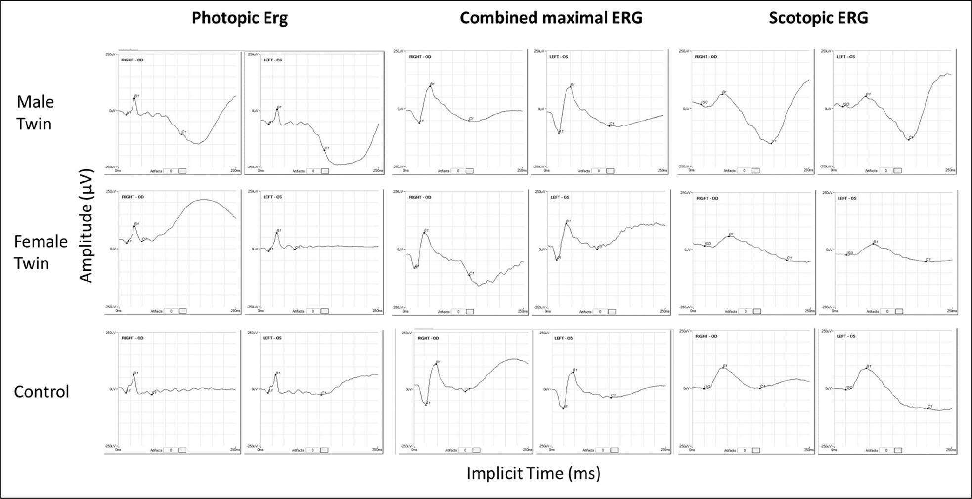 Electroretinography (ERG) results from the affected twins showing a mild amplitude reduction for scotopic response, whereas photopic and combined maximal responses are normal. Electroretinography trace from a control patient is shown for comparison.