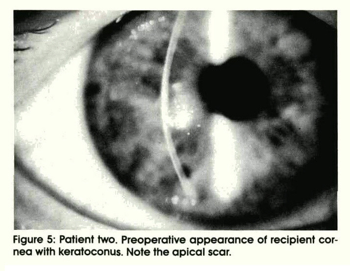 Figure 5: Patient two. Preoperative appearance of recipient cornea with keratoconus. Note the apical scar.