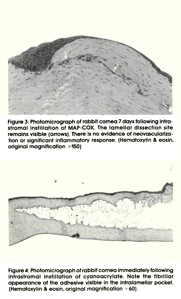 Figure 3: Photomicrograph of rabbit cornea 7 days following intrastromal instillation of MAP-COX. The lamellar dissection site remains visible (arrows). There is no evidence of neovascularization or significant inflammatory response. (Hematoxylin & eosin, original magnification ? 150)Figure 4: Photomicrograph of rabbit cornea immediately following intrastromal instillation of cyanoacrylate. Note the fibrillar appearance of the adhesive visible in the intralamellar pocket. (Hematoxylin & eosin, original magnification x 60).