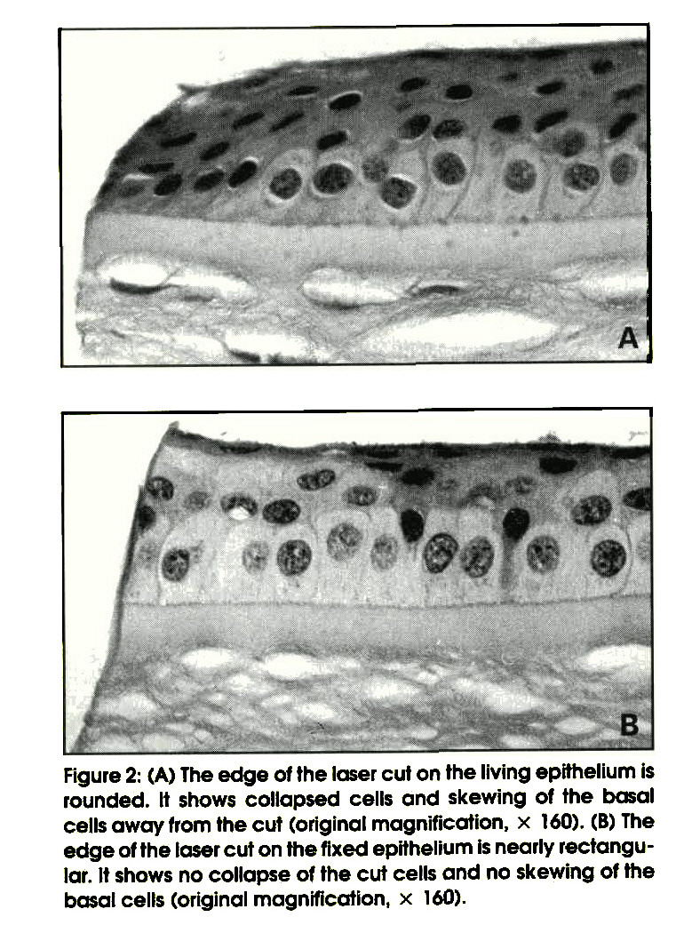 Figure 2: (A) The edge of the laser cut on the living epithelium is rounded. It shows collapsed cells and skewing of the basal cells away from the cut (original magnification, × 160). (B) The edge of the laser cut on the fixed epithelium is nearly rectangular. It shows no collapse of the cut cells and no skewing of the basal cells (original magnification, × 160).