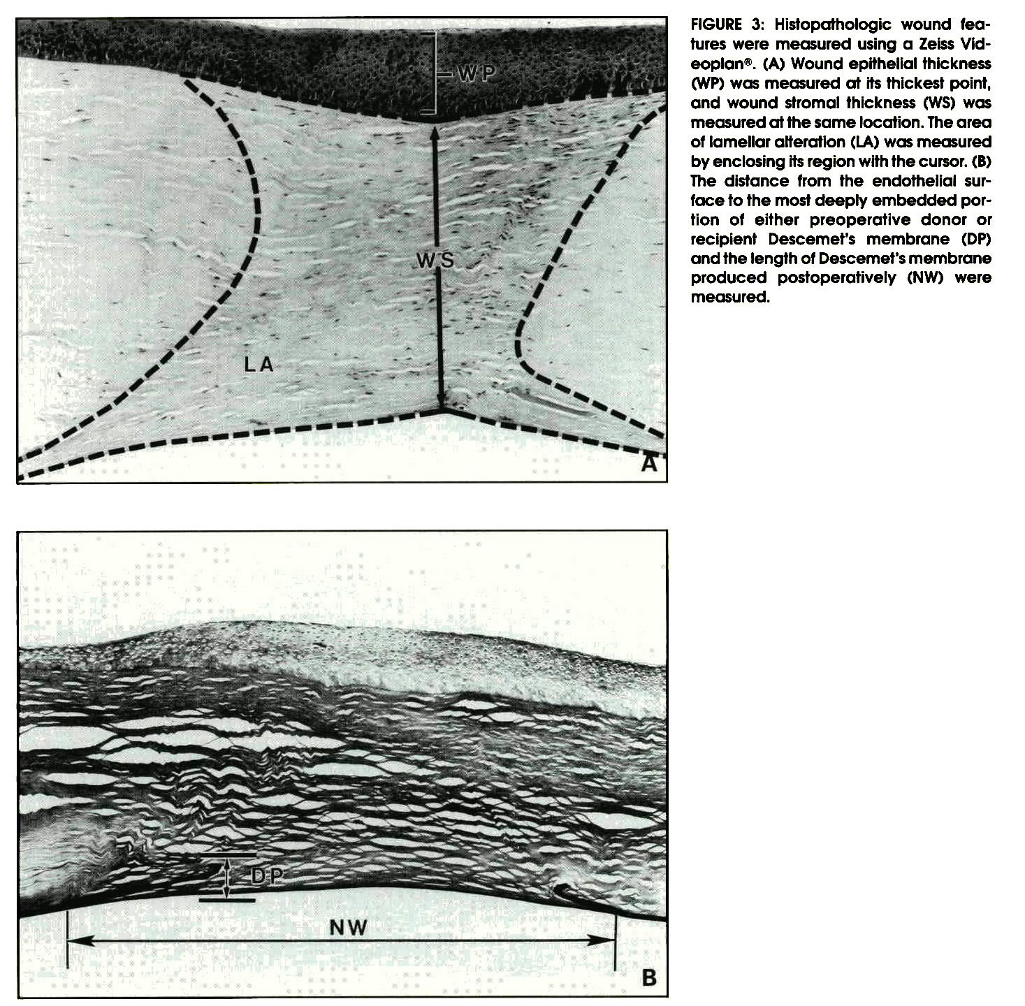 FIGURE 3: Histopathologic wound features were measured using a Zeiss Videoplan®. (A) Wound epithelial thickness (WP) was measured at its thickest point, and wound stromal thickness (WS) was measured at the same location. The area of lamellar alteration (LA) was measured by enclosing its region with the cursor. (B) The distance from the endothelial surface fo fhe most deeply embedded portion of either preoperative donor or recipient Descemet's membrane (DP) and the length of Descemet's membrane produced postoperatively (NW) were measured.