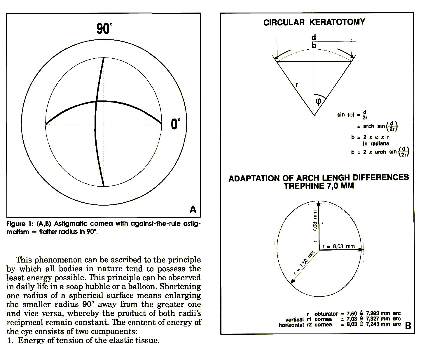 Figure 1: (A1B) Astigmatic comea with agalnst-the-rule astigmatism = Hatter radius in 90°.