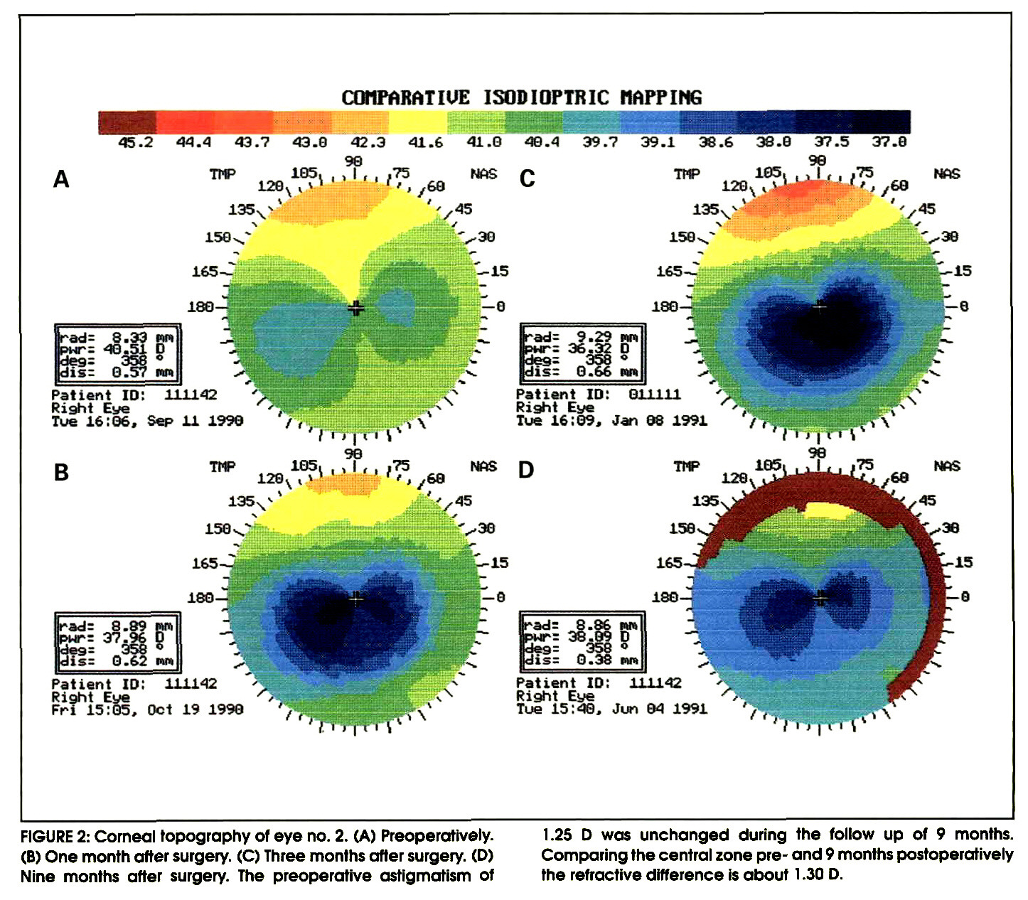 FIGURE 2: Corneal topography of eye no. 2. (A) Preoperatively. (B) One month after surgery. (C) Three months after surgery. (D) Nine months after surgery. The preoperative astigmatism of 1.25 D was unchanged during the follow up of 9 months. Comparing the central zone pre- and 9 months postoperatively the refractive difference is about 1 .30 D.