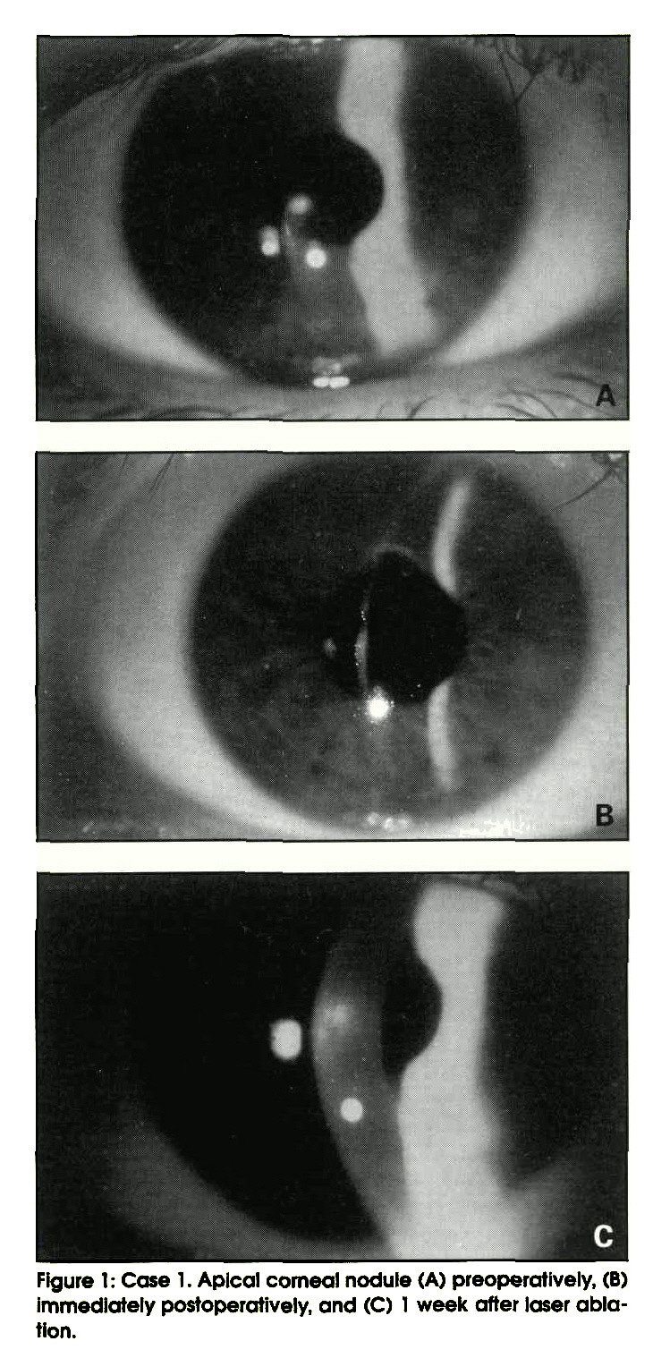 Figure 1: Case 1. Apical corneal nodule (A) preoperatively, (B) immediately postoperatively, and (C) 1 week after laser ablation.