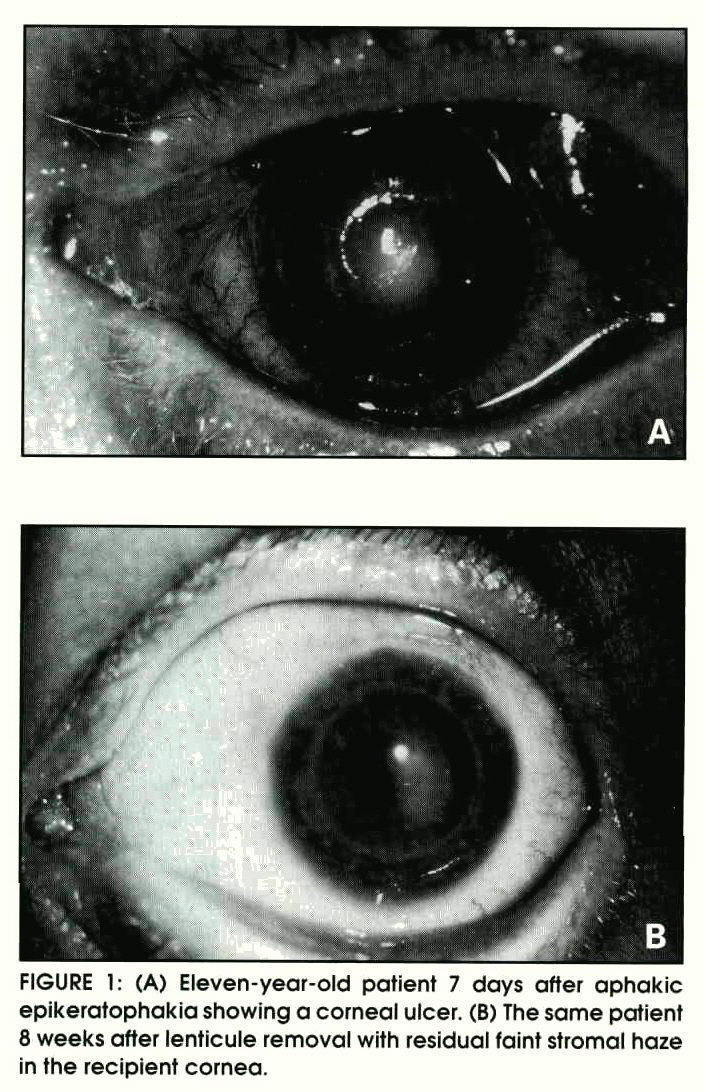 FIGURE 1: (A) Eleven-year-old patient 7 days after aphakic epikeratophakia showing a corneal ulcer. (B) The same patient 8 weeks after lenticule removal with residual faint stromal haze in the recipient cornea.