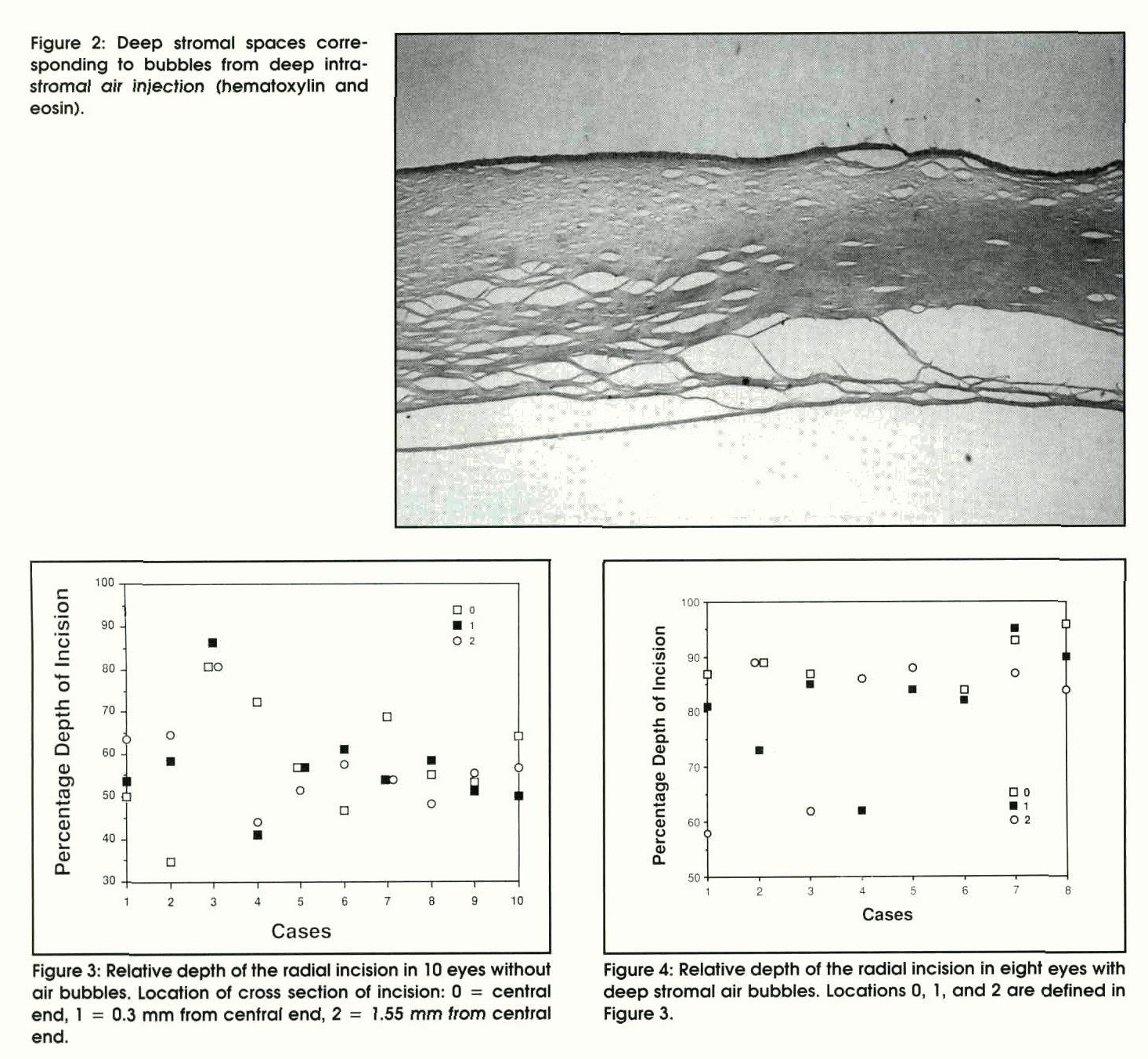 Figure 2: Deep stromal spaces corresponding to bubbles from deep intrastromal air injection (hematoxylin and eosin).Figure 3: Relative depth of the radial incision in 10 eyes without air bubbles. Location of cross section of incision: 0 = central end, 1 = 0.3 mm from centrai end, 2 = 1.55 mm from central end.Figure 4: Relative depth of the radial incision in eight eyes with deep stromal air bubbles. Locations 0, 1 , and 2 are defined in Figure 3.