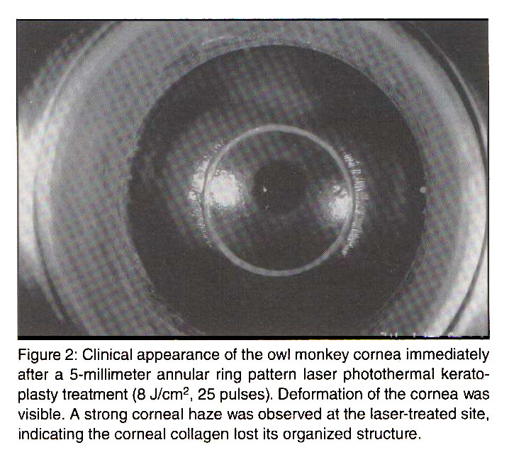 Figure 2: Clinical appearance of the owl monkey cornea immediately after a 5-millimeter annular ring pattern laser photothermal keratoplasty treatment (8 J/cmp 2, 25 pulses). Deformation of the cornea was visible. A strong corneal haze was observed at the laser-treated site, indicating the corneal collagen lost its organized structure.
