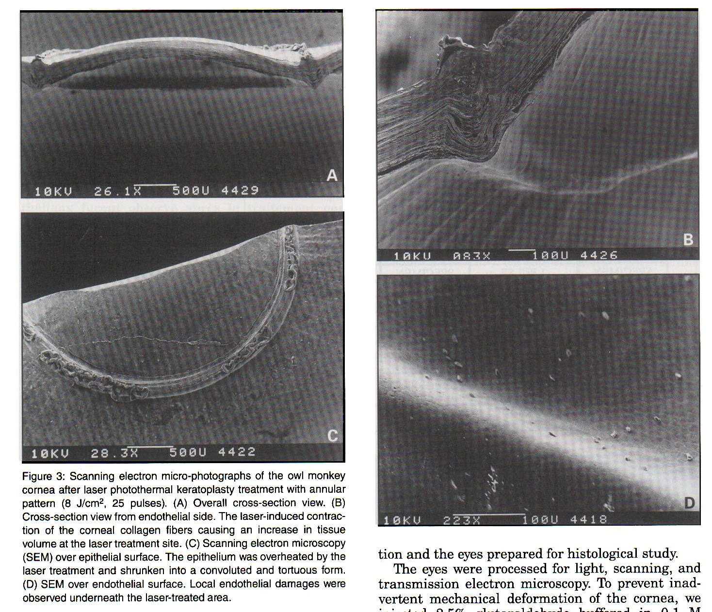 Figure 3: Scanning electron micro-photographs of the owl monkey cornea after laser photothermal keratoplasty treatment with annular pattern (8 J/cmp 2, 25 pulses), (A) Overall cross-section view. (B) Cross-section view from endothelial side. The laser-induced contraction of the corneal collagen fibers causing an Increase in tissue volume at the laser treatment site. (C) Scanning electron microscopy (SEM) over epithelial surface. The epithelium was overheated by the laser treatment and shrunken into a convoluted and tortuous form, (D) SEM over endothelial surface. Local endothelial damages were observed underneath the laser-treated area.