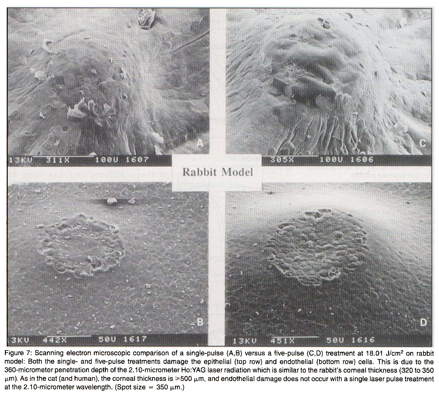 Figure 7: Scanning electron microscopic comparison of a single-pulse (A,B) versus a five-pulse (C1D) treatment at 18.01 J/cmp 2 on rabbit model: Both the single- and five-pulse treatments damage the epithelial (top row) and endothelial (bottom row) cells. This is due to the 360-micrometer penetration depth of the 2.10-micrometer Ho: YAG laser radiation which is similar to the rabbit's corneal thickness (320 to 350 µm). As in the cat (and human), the corneal thickness is >500 µm, and endothelial damage does not occur with a single laser pulse treatment at the 2.10-micrometer wavelength. (Spot size = 350 µm).