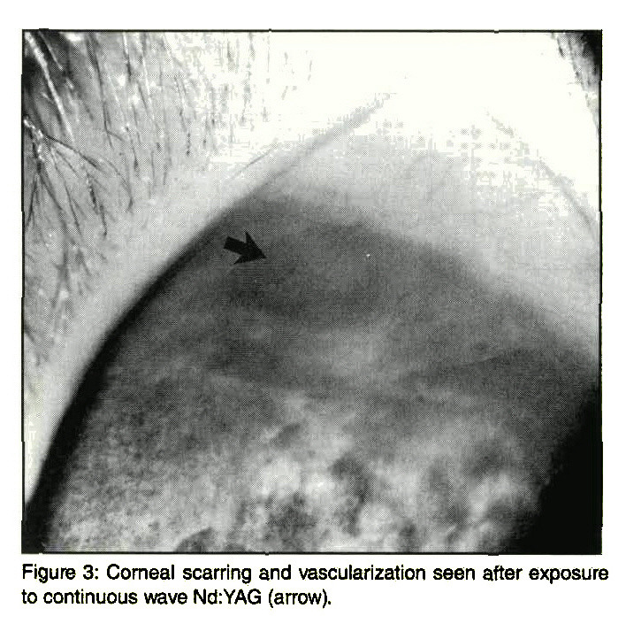 Figure 3: Corneal scarring and vascularization seen after exposure to continuous wave Nd:YAG (arrow).