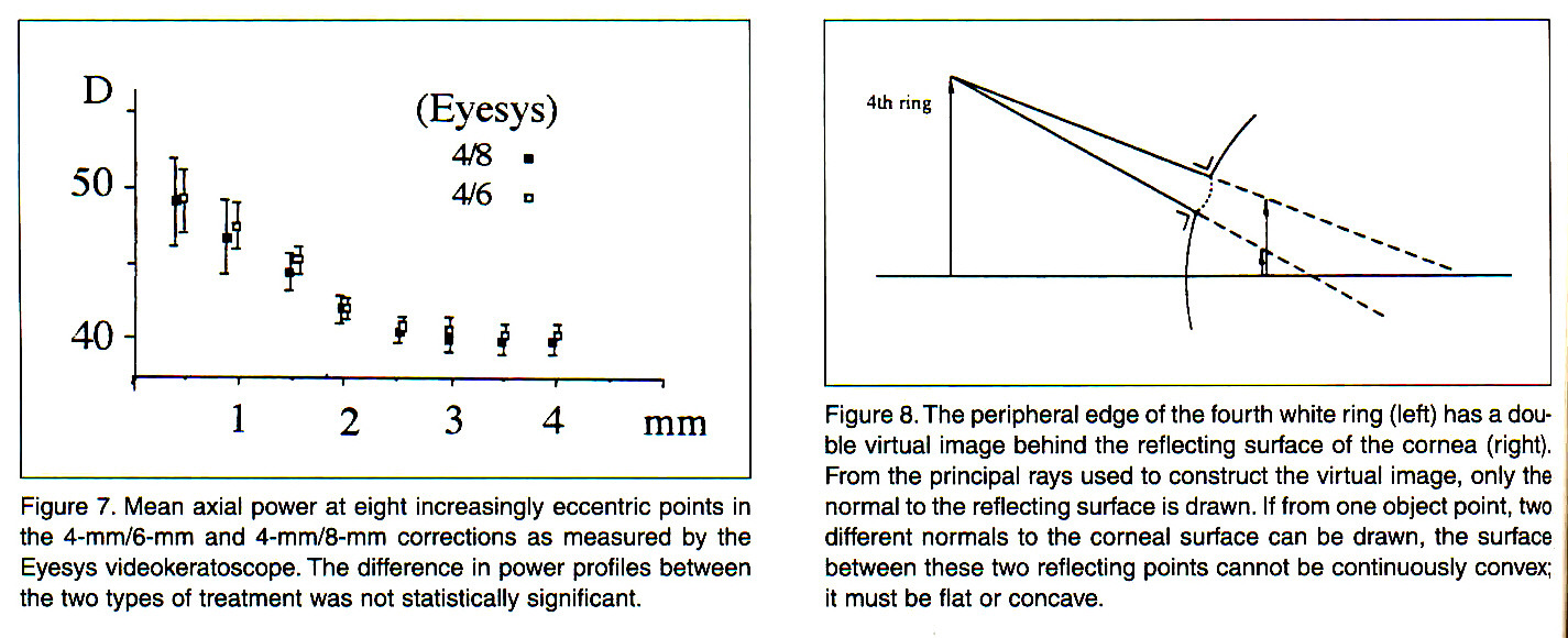 Figure 7. Mean axial power at eight increasingly eccentric points in the 4-mm/6-mm and 4-mm/8-mm corrections as measured by the Eyesys videokeratoscope. The difference in power profiles between the two types of treatment was not statistically significant.Figure 8. The peripheral edge of the fourth white ring (left) has a double virtual image behind the reflecting surface of the cornea (right). From the principal rays used to construct the virtual image, only the normal to the reflecting surface is drawn. If from one object point, two different normals to the corneal surface can be drawn, the surface between these two reflecting points cannot be continuously convex; it must be flat or concave.