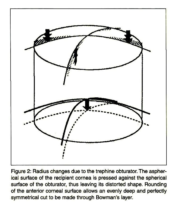 Figure 2: Radius changes due to the trephine obturator. The aspherical surface of the recipient cornea is pressed against the spherical surface of the obturator, thus leaving its distorted shape. Rounding of the anterior corneal surface allows an evenly deep and perfectly symmetrical cut to be made through Bowman's layer.