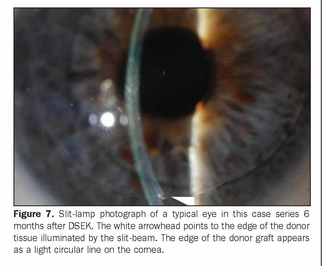 Figure 7. Slit-lamp photograph of a typical eye in this case series 6 months after DSEK. The white arrowhead points to the edge of the donor tissue illuminated by the slit-beam. The edge of the donor graft appears as a light circular line on the cornea.
