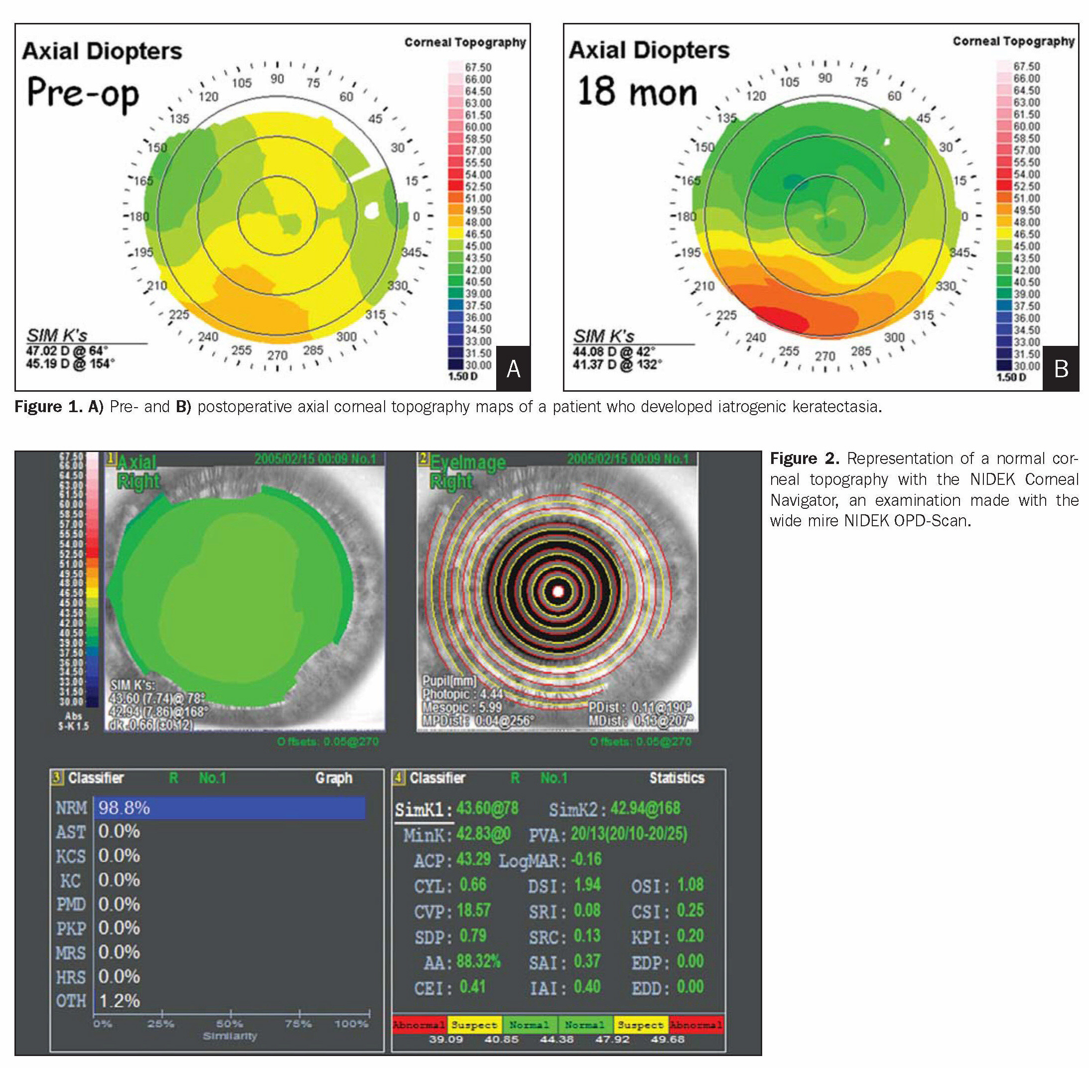 Figure 1. A) Pre- and B) postoperative axial corneal topography maps of a patient who developed iatrogenic keratectasia.Figure 2. Representation of a normal corneal topography with the NIDEK Corneal Navigator, an examination made with the wide mire NIDEK OPD-Scan.