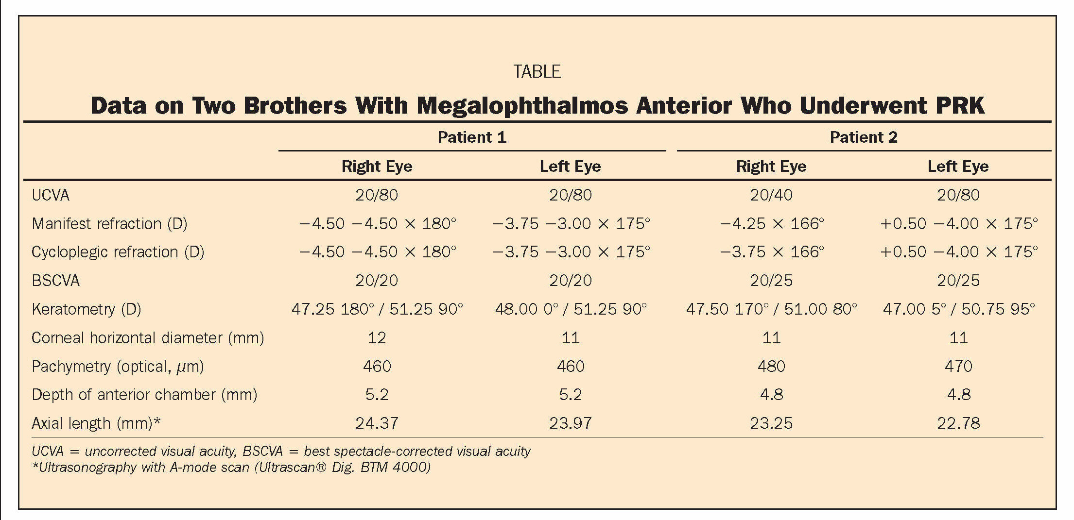 TABLEData on Two Brothers With Megalophthalmos Anterior Who Underwent PRK