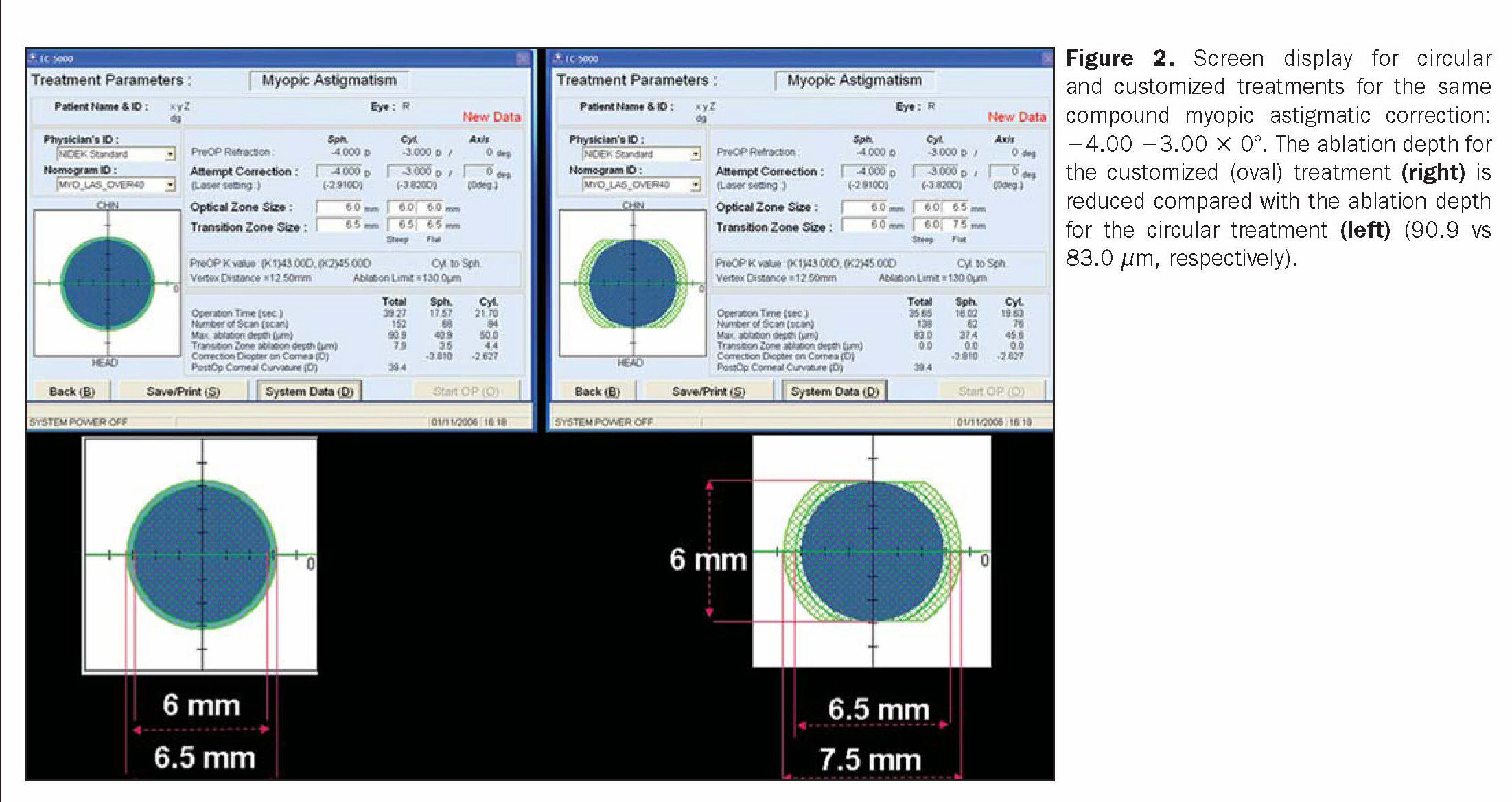 Figure 2. Screen display for circular and customized treatments for the same compound myopic astigmatic correction: -4.00 -3.00 × 0°. The ablation depth for the customized (oval) treatment (right) is reduced compared with the ablation depth for the circular treatment (left) (90.9 vs 83.0 µm, respectively).