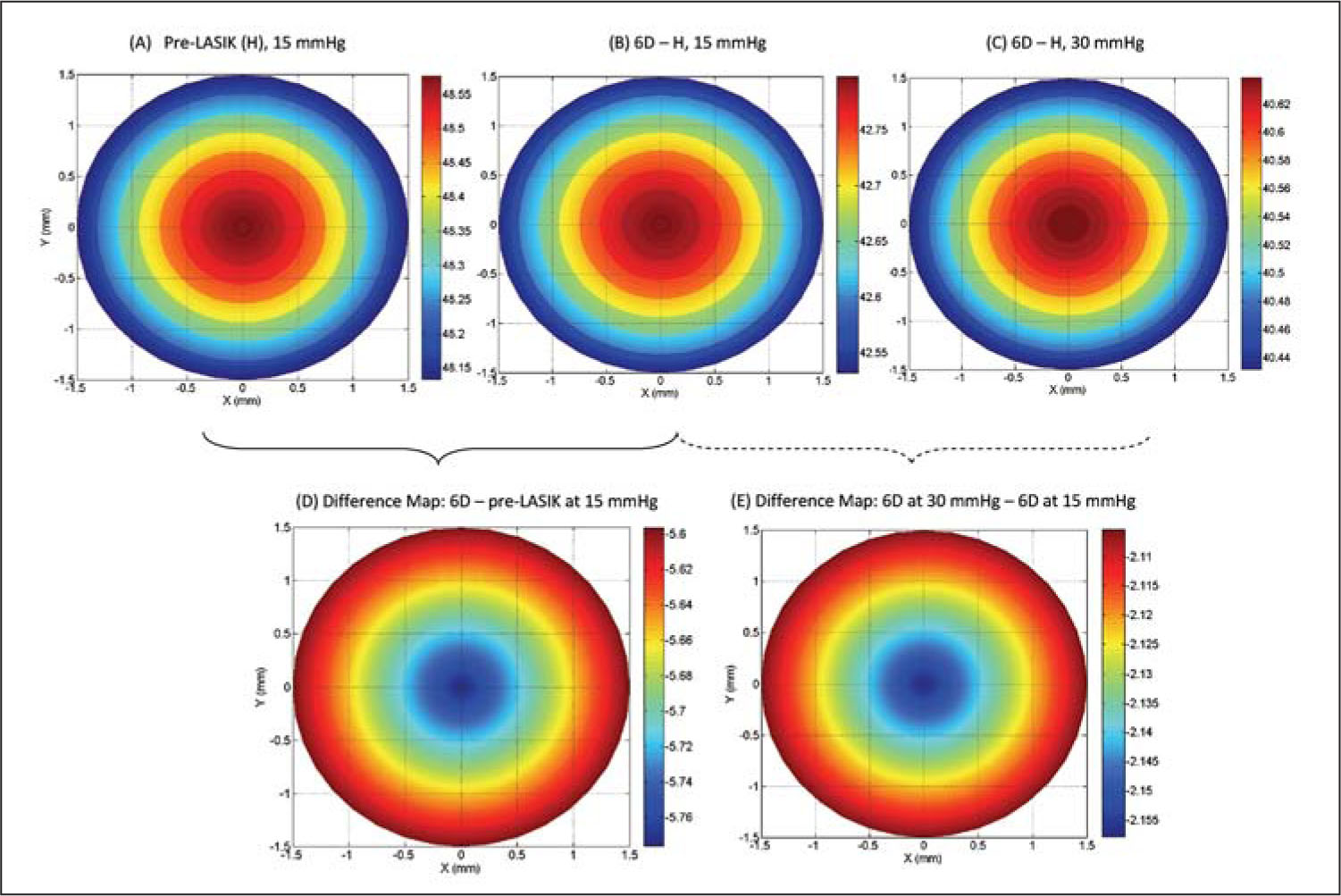 Tangential Power Maps for Preoperative LASIK (H), 6D-H at 15 and 30 mmHg, and Their Difference Map (postoperative–Preoperative LASIK). Compared to Weaker Cornea and Postoperative LASIK, the Stiffer Cornea (H) Flattens Less than the Weaker Cornea as the Intraocular Pressure Increases from 15 to 30 mmHg.