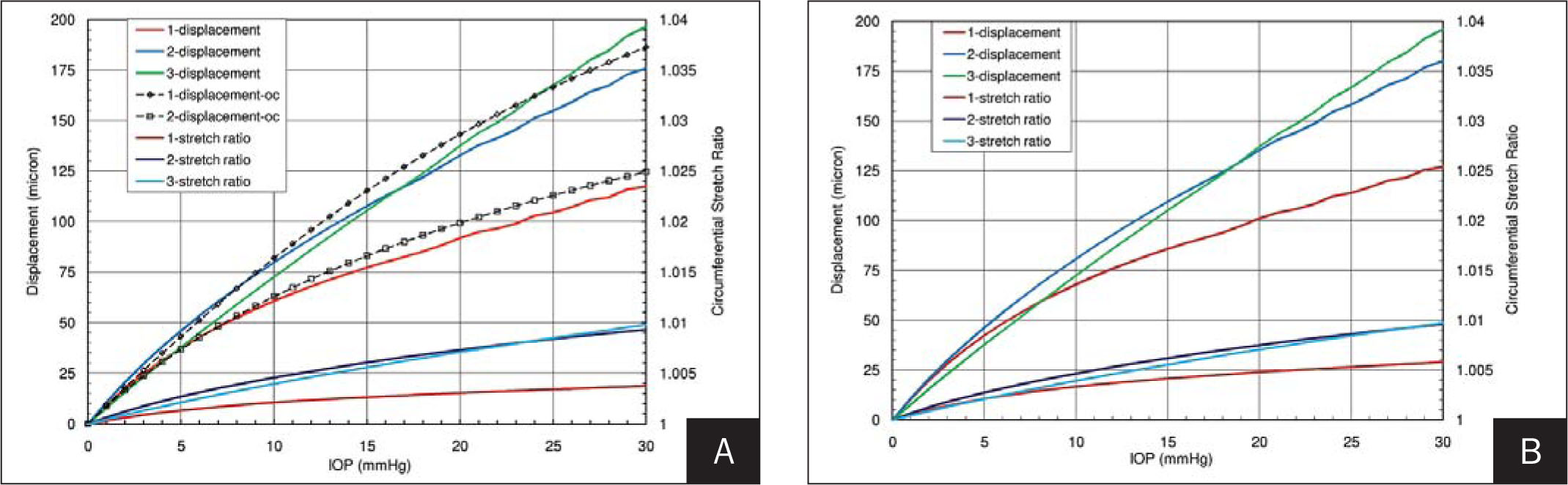 Displacement and Stretch Ratio as a Function of Intraocular Pressure (IOP) at the Center, Paracenter, and Limbus. A) Preoperative LASIK (H) and Cornea-Only (fixed Limbus) and B) 6D-H Postoperative LASIK Models. The Stiffer Hyperelastic Behavior of the Cornea Favors Paracentral and Limbal Displacement over Central Corneal Displacement in Both the Unoperated and Postoperative LASIK States, but only when Extracorneal Structures Are Considered.