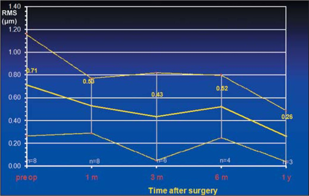 Coma Before and After Retreatment of Eight Eyes with Reduced Visual Quality Due to Keratorefractive Surgery. All Wavefront Measurements Are Plotted for a 6-mm Pupil Diameter to the 6th Radial Order. RMS = Root-Mean-Square
