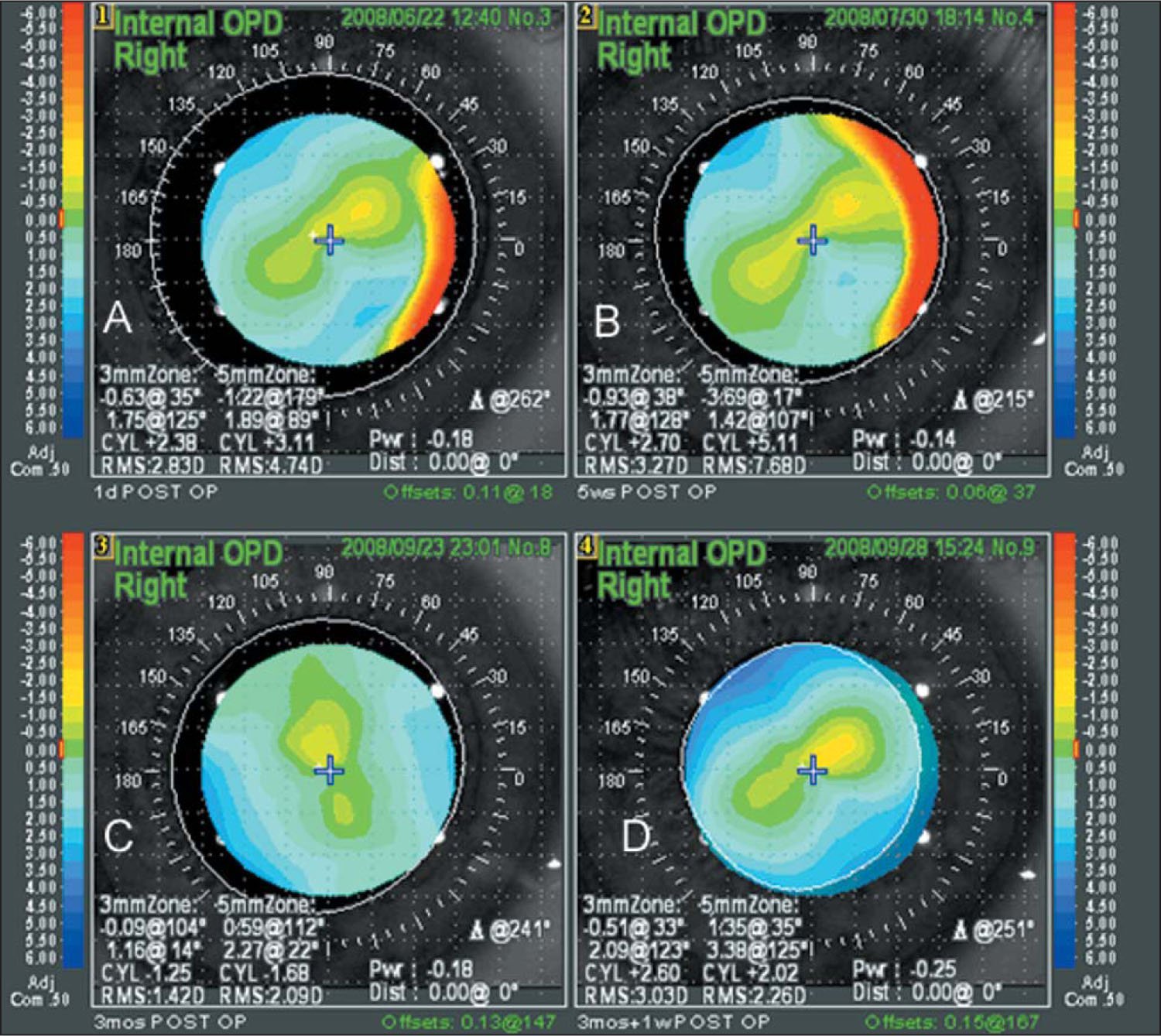 Internal OPD Map Showing the Axis Alignment of the Toric Implantable Collamer Lens in One Eye at A) Baseline (day 1), B) 1 Month, C) 3 Months (which Shows Significant Misalignment), and D) After Repositioning.
