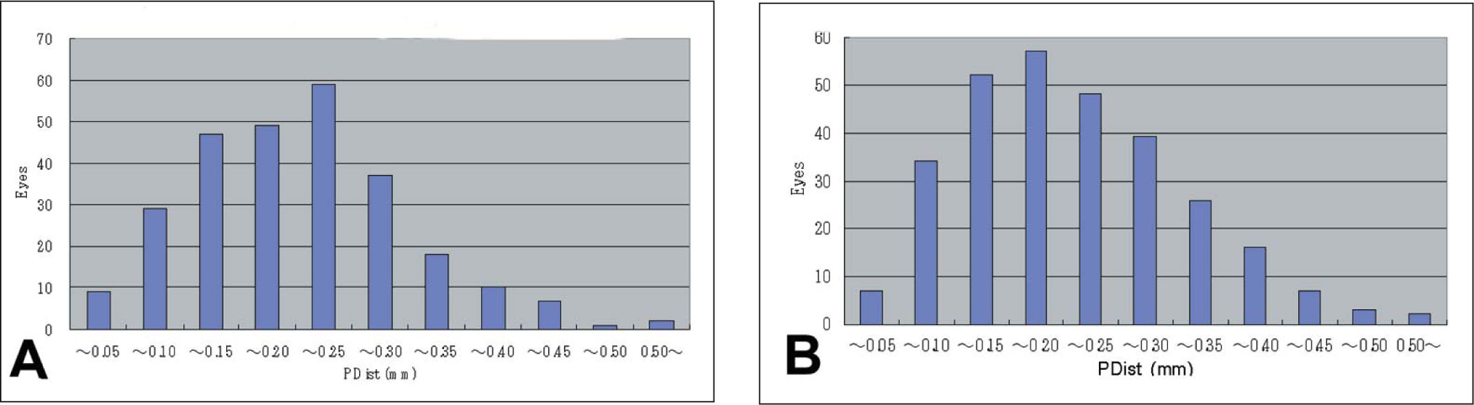 Histograms of the Preoperative Distance Between the Coaxially Sighted Corneal Vertex and the Pupil Center (P-Dist) Measured by the OPD-Scan for Eyes that Underwent Myopic Excimer Ablation Centered on the A) Coaxially Sighted Corneal Light Reflex and B) Line of Sight.