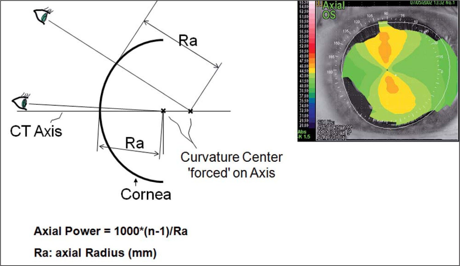 Schematic of Axial Topography Including a Sample Topography of the Left Eye. Yellow Denotes Steeper Curvature than Green. CT Axis = Corneal Topography Axis