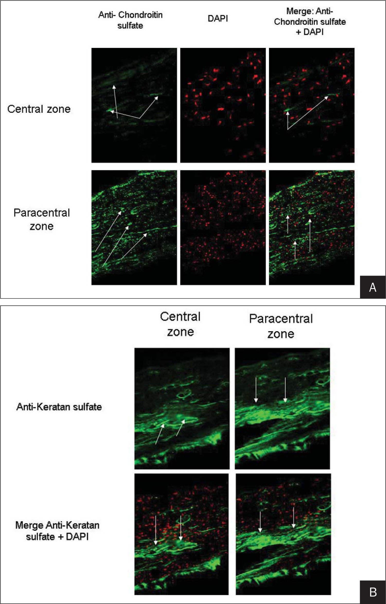 A) Increased expression of chon-droitin sulfate (arrows) is observed in the central zone (upper panels) compared with the paracentral corneal flap edge (lower panels). Left panels show the expression of chondroitin sulfate. Middle panels demonstrate 4′6-diamidino-2-phenylindole (DAPI) nuclear counterstaining (red cells). Right panels show a merge of both stains. B) Increased expression of keratan sulfate (arrows) is observed in the central zone (left panels) compared with the paracentral corneal flap edge (right panels). Upper panels show the expression of keratan sulfate. Lower panels illustrate a merge of keratan sulfate and DAPI nuclear counterstaining (red cells).