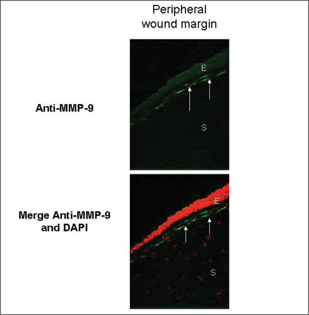 Significant expression of MMP-9 (arrows) is observed in the peripheral wound margin scar in all eyes analyzed (upper panel). Lower panel illustrates a merge of MMP-9 and 4′6-diamidino-2-phenylindole (DAPI) nuclear counterstaining (red cells). E=epithelium, S=stroma