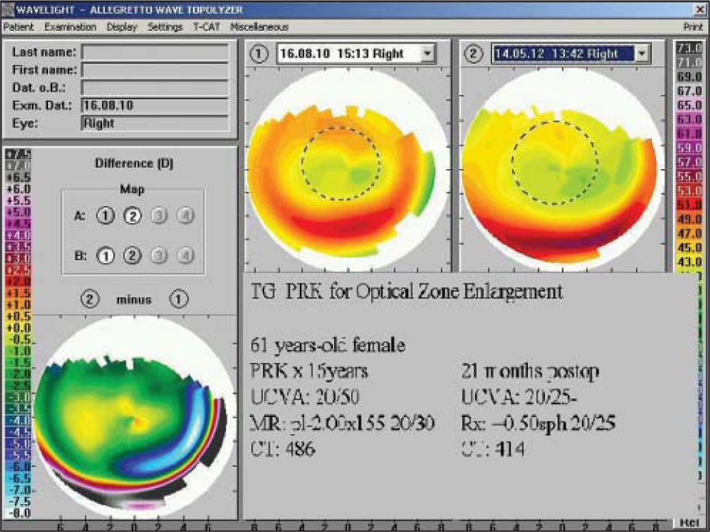 Enlargement of optical zone with topography-guided photorefractive keratectomy.